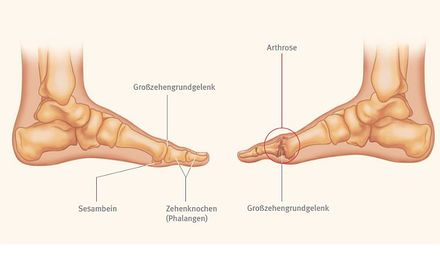 Spiraldynamik®: Hallux rigidus – TRIAS Verlag – Gesundheit