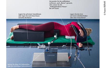 Zu sehen ist hier die Seitenlage ohne Vakuummatte mit 2 Seitenstützen, gepolsterten Armhaltern und Kissen zur Vermeidung aufeinanderliegender Beine.