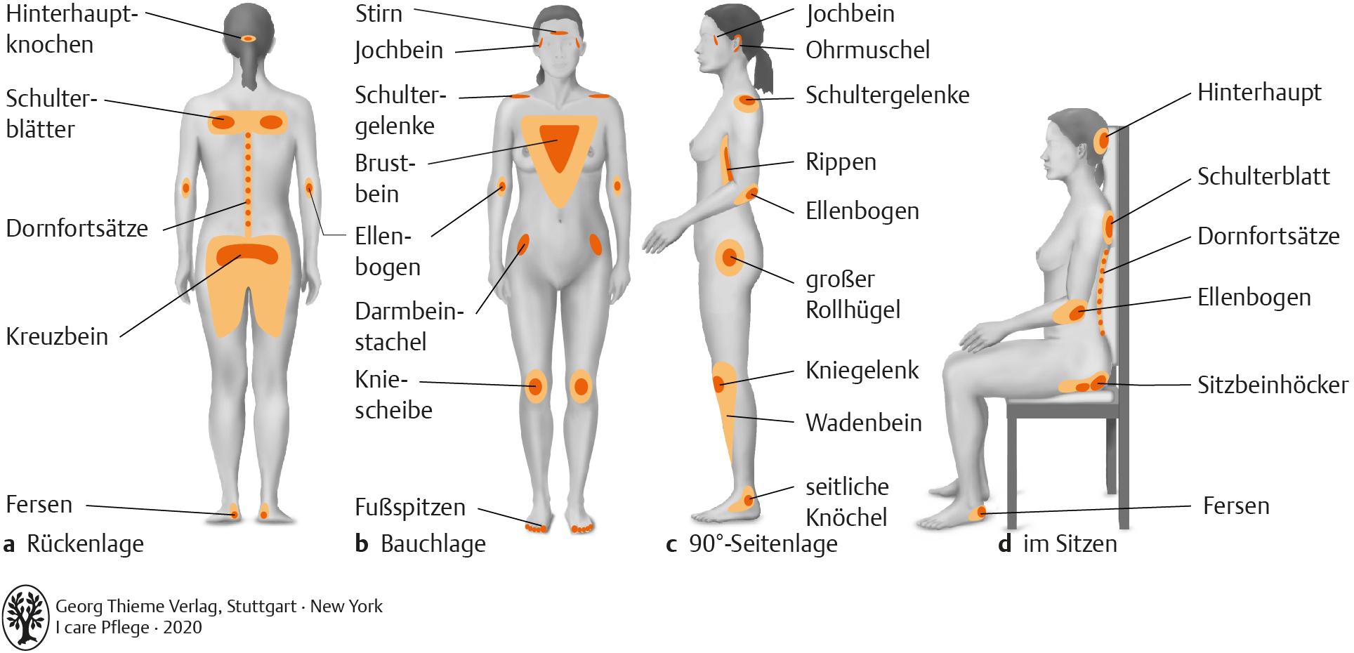 20. Prophylaxen   Pflegepädagogik   Georg Thieme Verlag
