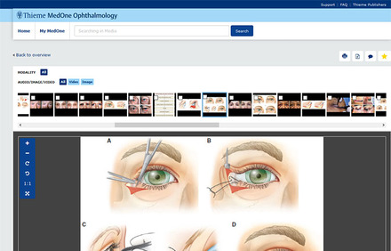 MedOne Ophthalmology