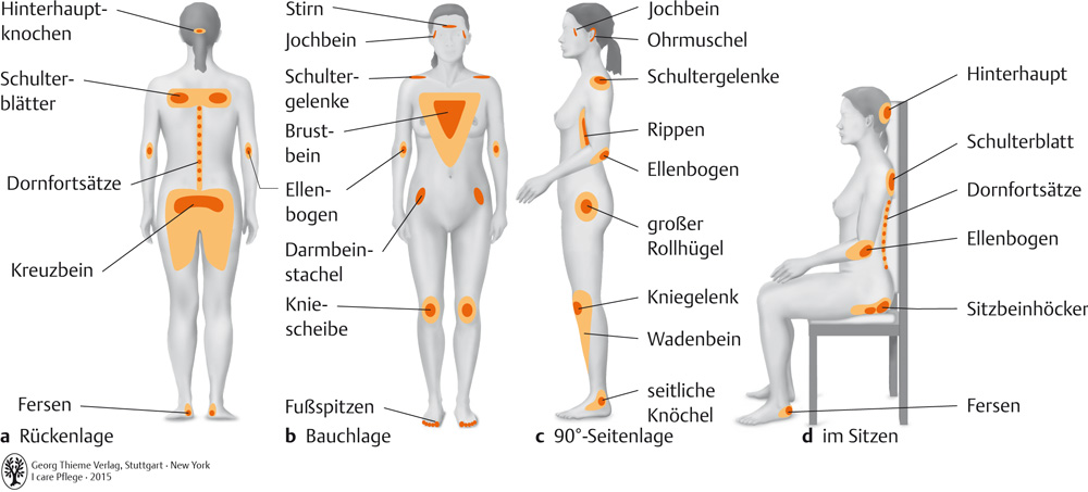 21. Prophylaxen - Pflegepädagogik - Georg Thieme Verlag