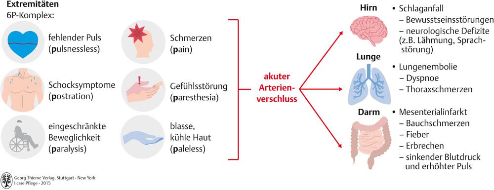 54. Kreislauf- und Gefäßsystem - Pflegepädagogik - Georg Thieme Verlag