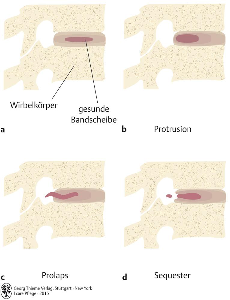 61. Nervensystem - Pflegepädagogik - Georg Thieme Verlag