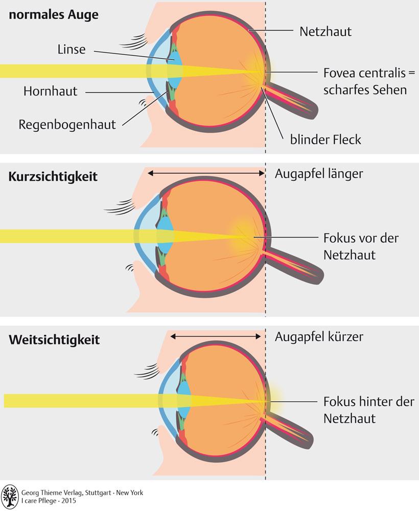 62. Sinnesorgane - Pflegepädagogik - Georg Thieme Verlag