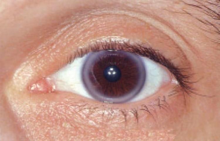 Ring Around Iris Heart Disease
