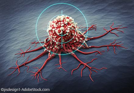 Zwei Gegen Den Krebs Klinik Via Medici
