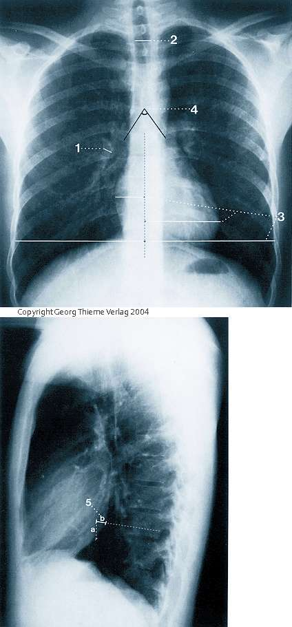 thorax im r ntgenbild klinik via medici. Black Bedroom Furniture Sets. Home Design Ideas