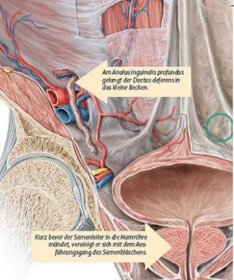 Anatomische Kasuistik: Vasektomie - Klinik - Via medici